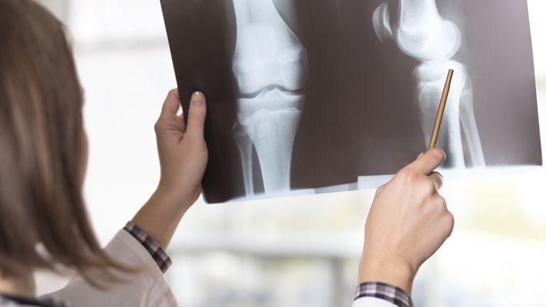 ha a csípőízület ízületi gyulladása van folyadék a térdízületben orvosi kenőcs
