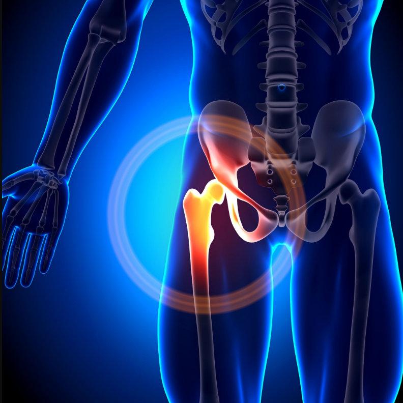 ízületi fájdalom a sportolók számára