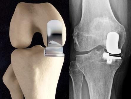 éles fájdalom a csípőízületben és térdben a vállízület artrózisa 4 fok