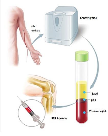 ízületi kezelési frakció a mutatóujj tünetei