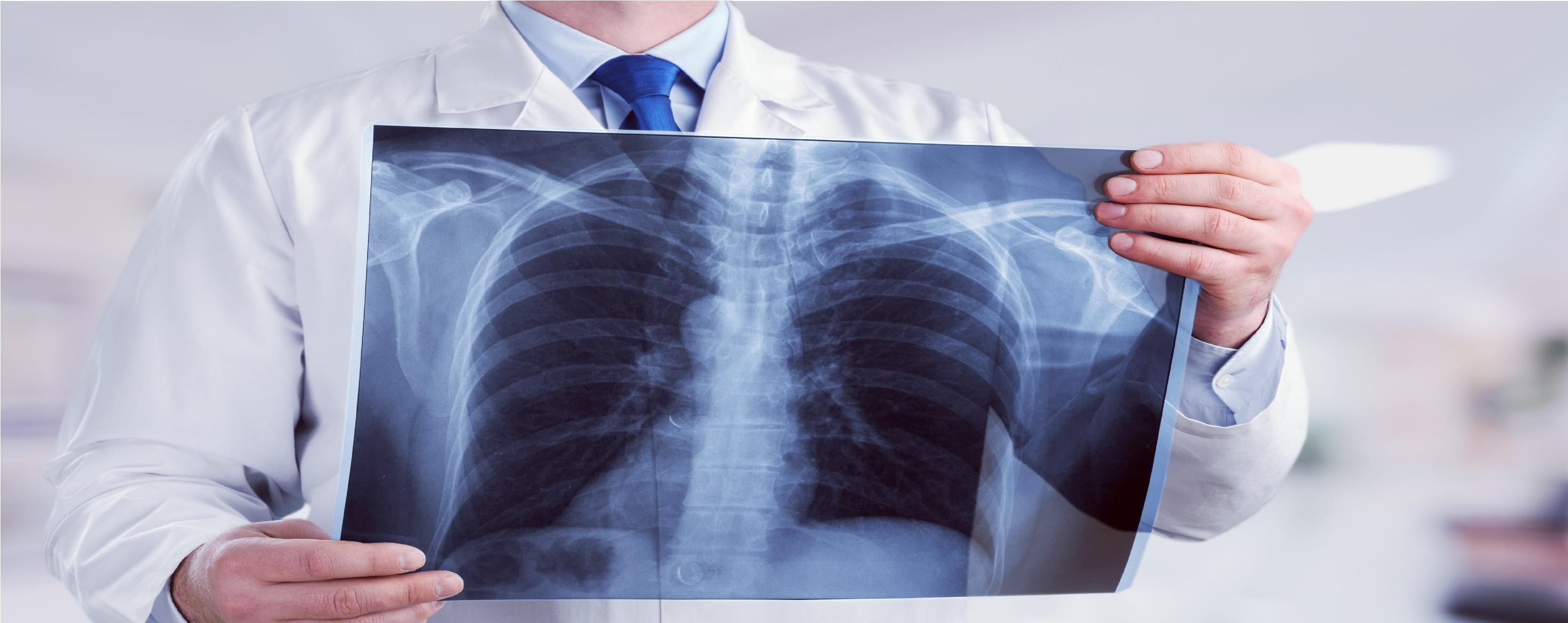 tüdőgyulladás ellen házilag