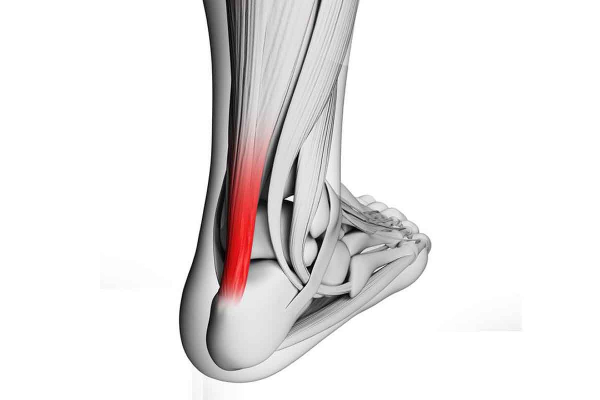 a térd artrózisának sürgősségi kezelése a térdízület tüneteit és kezelését vezérli