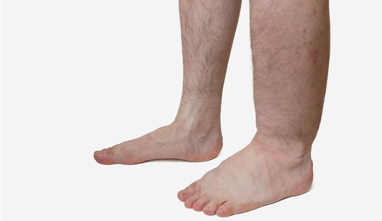 kezelés duzzadt és fájdalmas láb