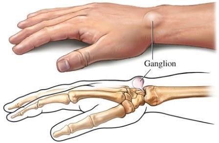 fájdalom az ujj ízületében hajlításkor