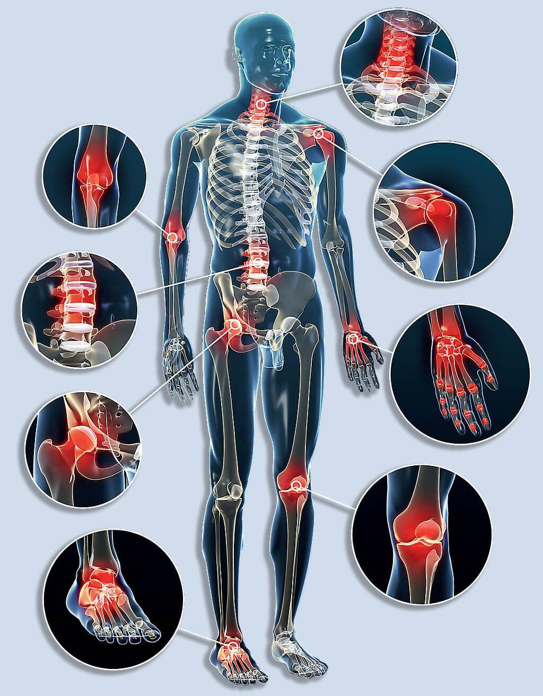 hasi fájdalom és ízületi fájdalmak