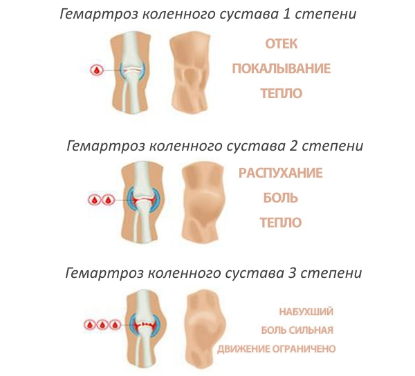 a lábízület boka artrózisa a push-upok ízületei fájnak