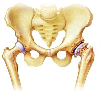 ízületi fájdalom a csípőízületben a jobb térd artrózisa hogyan kell kezelni