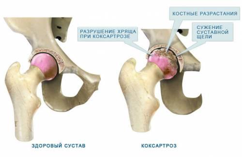 fájdalomcsillapítók a csípőízület coxarthrosisához