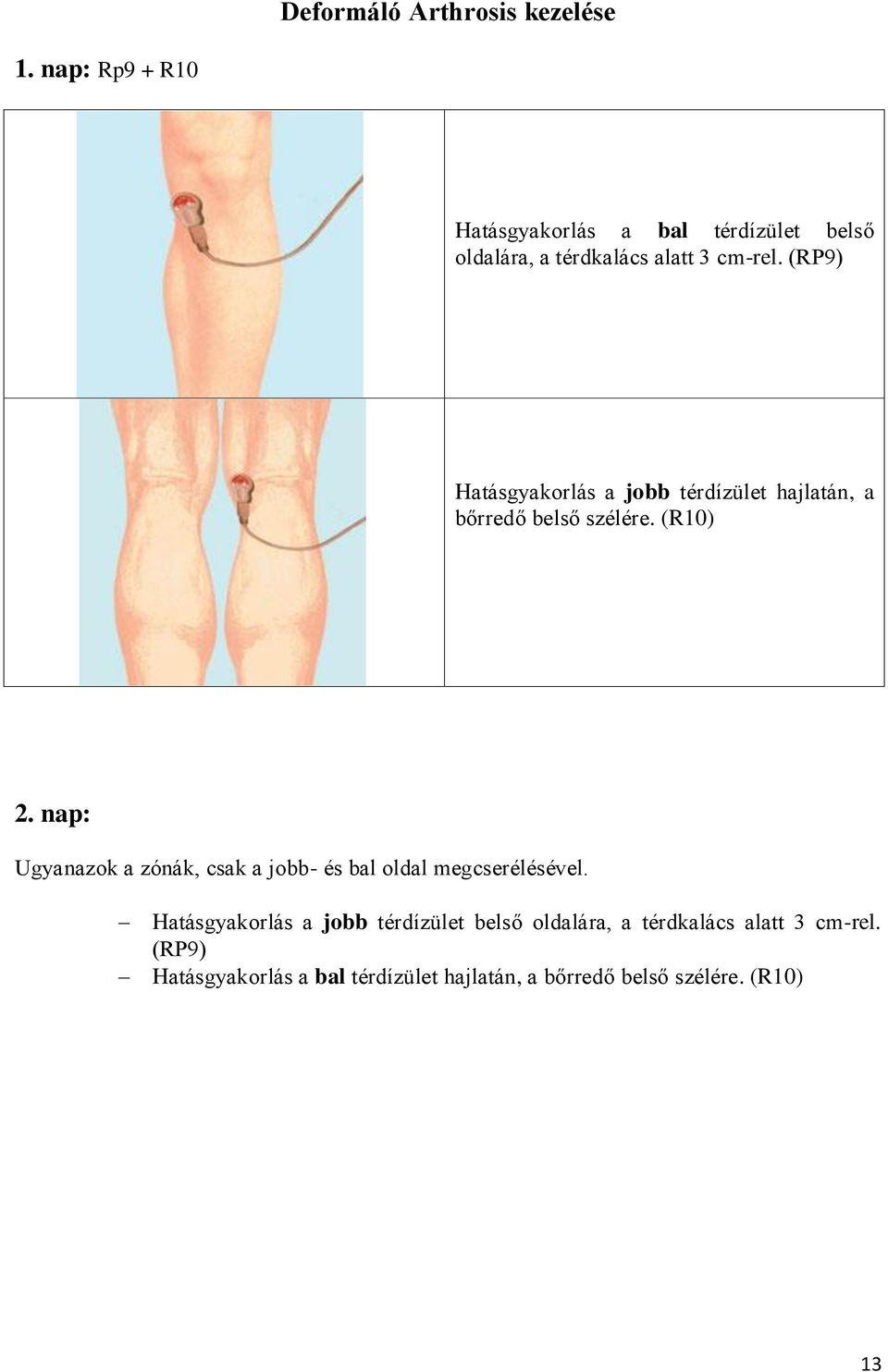 A 2. fokú térdízületek gonartrózisa: okai, tünetei, kezelése