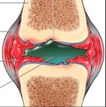 a hátsó ívek ízületi gyulladása