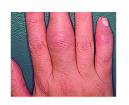 a kis ujjízület ízületi gyulladása