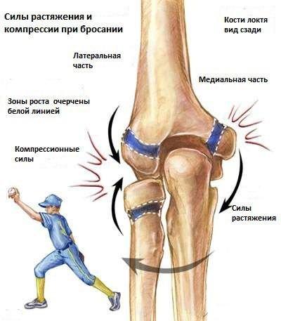 orvosi protokoll a térd artrózisának kezelésére térd epicondylitis hogyan kell kezelni