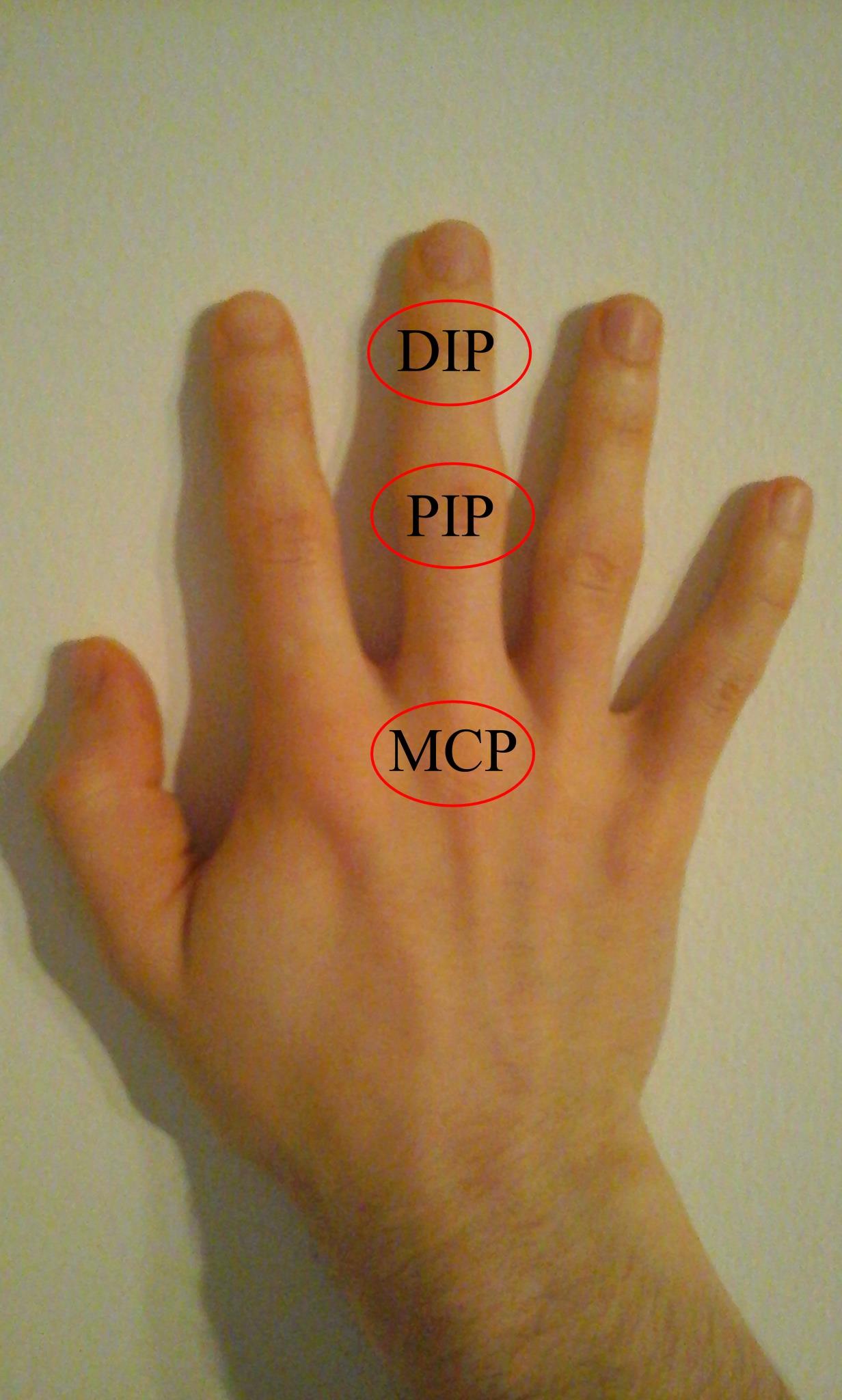 a középső ujj ízületének károsodása