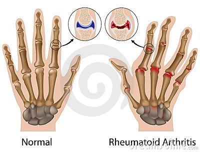 a kéz és a láb ízületei fájnak, mit kell tenni