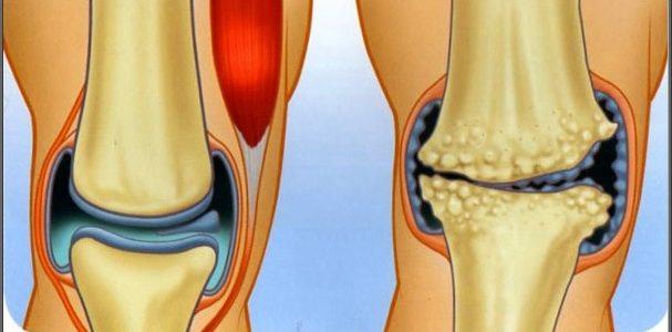 A lábak anatómiai szerkezete