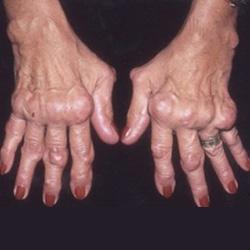 a lábujjak és a kéz ízületi gyulladása olaj ízületi kezelés