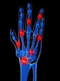 csukló-váll fájdalom deformáló artrózis sebészi kezelése