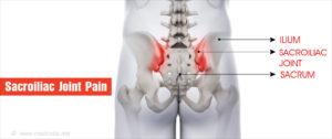 ízületi betegségek gyógyszere rheumatoid arthritis fájdalom a könyökben és az ízületekben