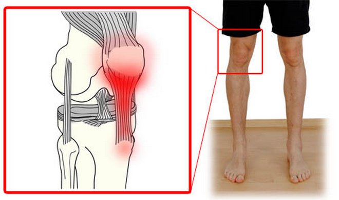 a térd artrózisának vagy ízületi gyulladásának azonosítása csukló fájdalom orvos válaszol