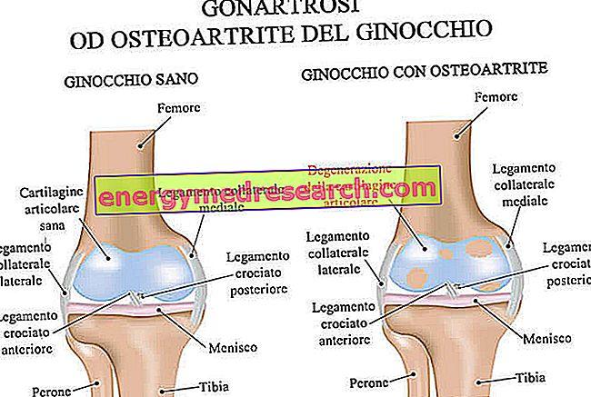 Tünetek, tünetek és a térdízületi gonartrózis kezelése - Sérülések