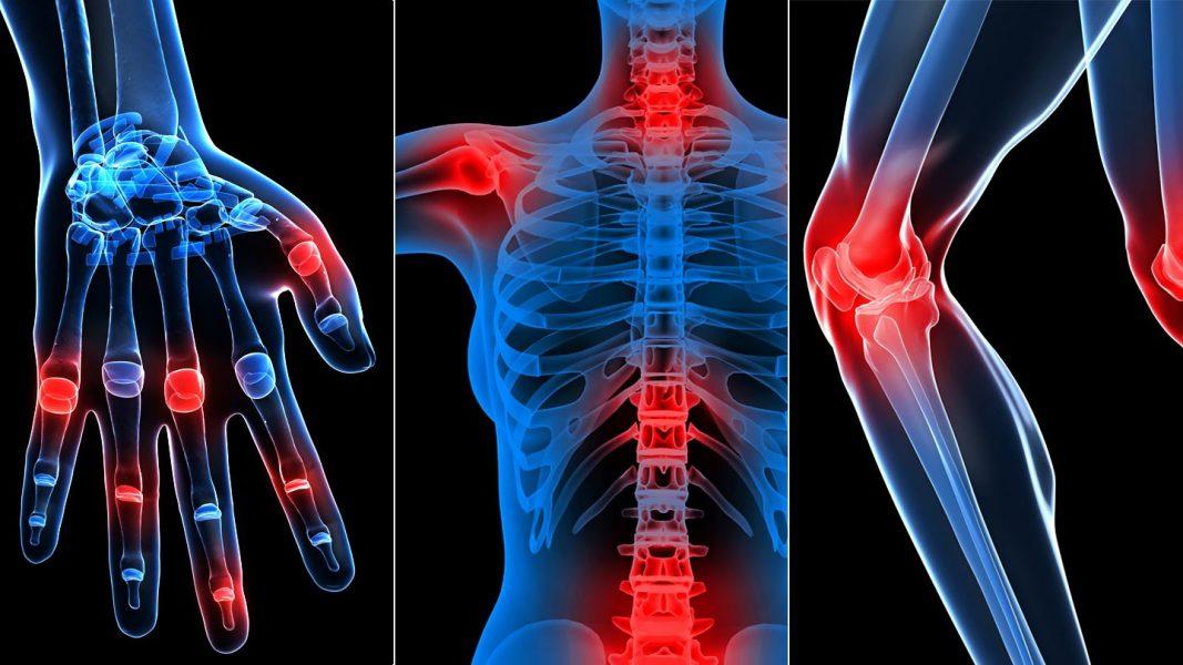 a térd életkorral összefüggő artrózisa