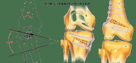 Térd - Súlypont Ízületklinika