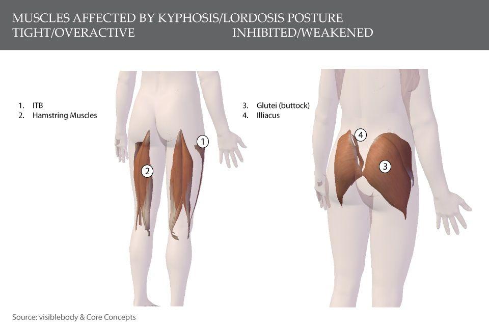 rheumatoid arthritis pathogenesis review