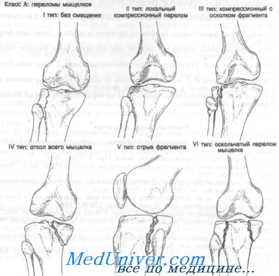hip bursitis kenőcs