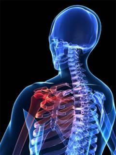 a vállízület artrózisa 4 fok