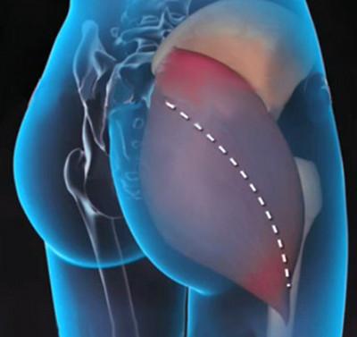a csípőízület bilaterális artrózisa