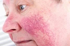 homeopátia ízületi fájdalomcsillapítók