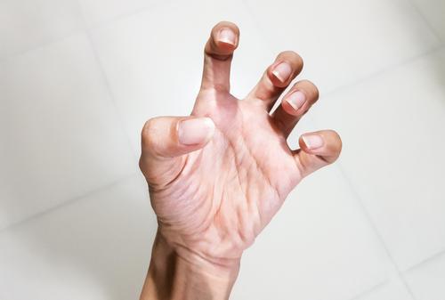 ízület a gyűrűs ujj fáj térdízület traumatikus hemarthrosis