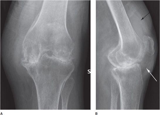 rheumatoid arthritis radiology knee térdízületi gyulladás oxigénkezelése