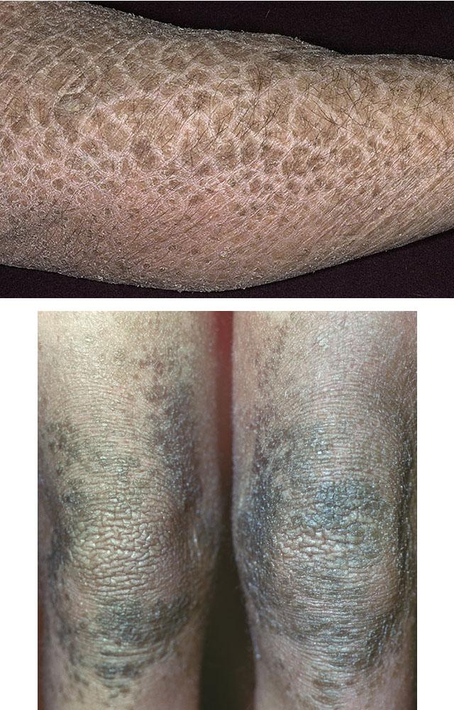 a térdízület meniszkuszának megszakításának kezelése