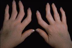 ahol a rheumatoid arthritist kezelik fájdalom a térd elején a pohár alatt
