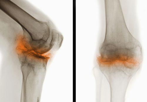 arthrosis chondrosis kezelés