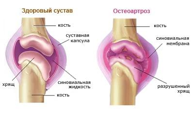 artrózisos kezelés chondroprotektorok