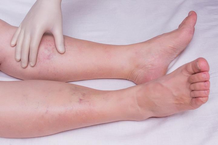 az alsó végtagok artrózisának tünetei és kezelése