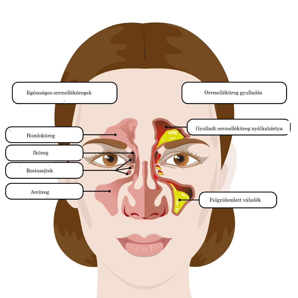az arc ízületi gyulladásainak tünetei és kezelése az arcízület károsodása