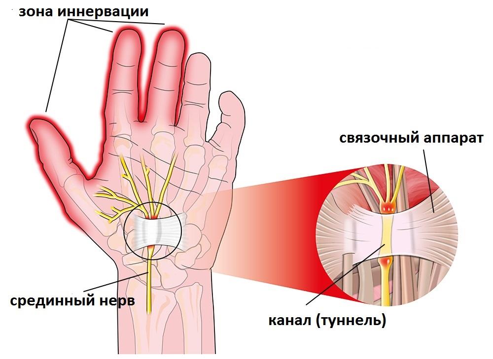 A kezek és a kezek csontok felépítése és funkciói - Homorú-domború lencse