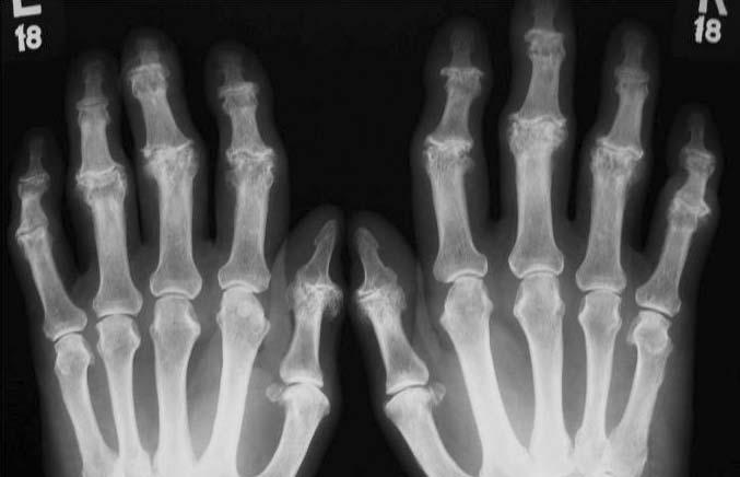 az összes ízület rheumatoid arthritis gyógyszer az ampullák ízületi fájdalmairól