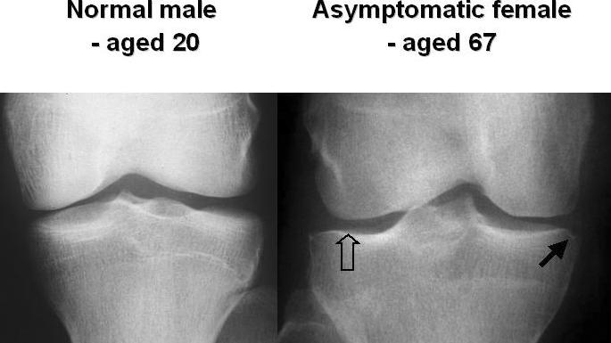 az összes ízület rheumatoid arthritis milgamma ízületi fájdalom