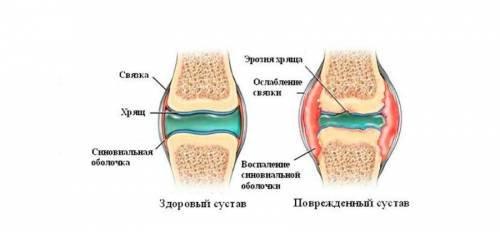 hidzsáma térd artrózisával