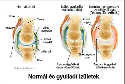 térd izületi gyulladása kórházi együttes kezelés