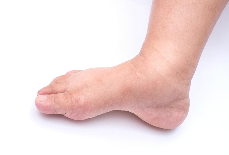 boka duzzanatának okai és kezelése térdfájdalom és lábduzzanat