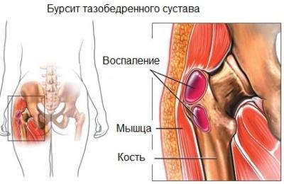fájdalom a csípőízületben az ágyék területén ha a csípőízület ízületi gyulladása van