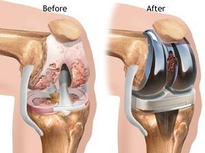 modern eszközök az artrózis kezelésére térdízület fájdalma a borjúban