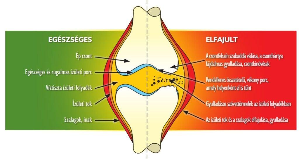 elasztikus ízületi betegség