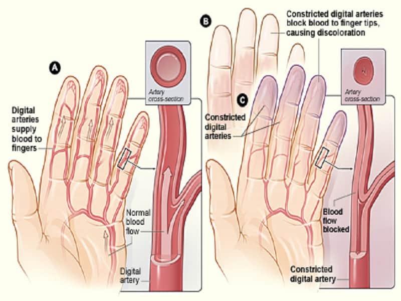 boka fertőző ízületi gyulladása
