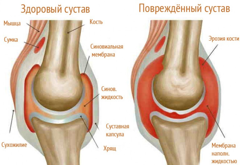Lábhát és bokafájdalmak, duzzanat - leírás, okok és kezelés